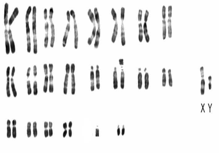 الوراثة البشرية CHROMOTRANSFERT.png